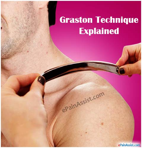 Graston Technique (GT) in Chiropractic Treatment