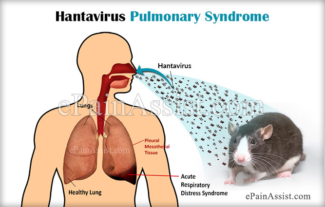 Hantavirus Pulmonary Syndrome|Signs|Symptoms|Causes|Prevention ...
