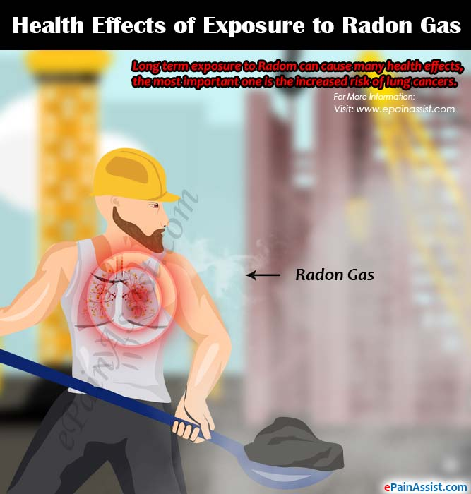 Health Effects of Exposure to Radon Gas