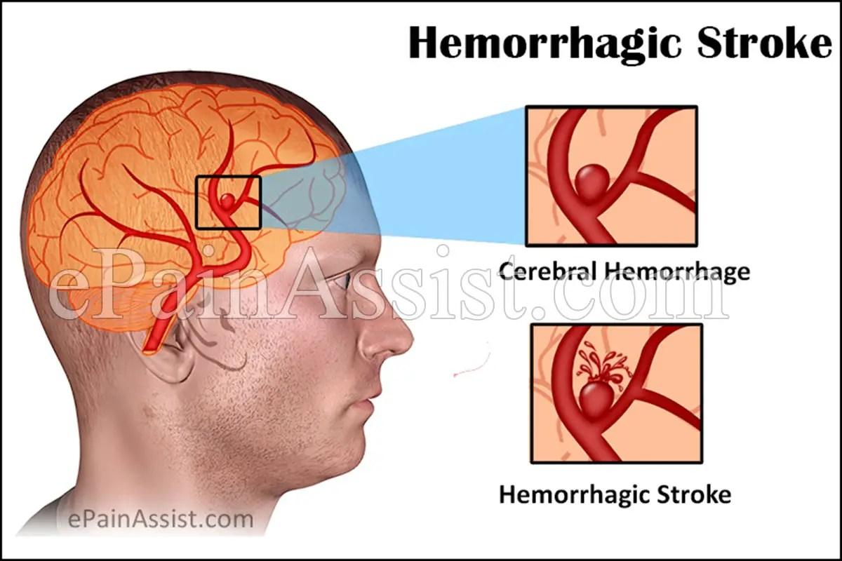 hemorrhagic stroke symptoms treatment recovery survival causes types stroke treatment diagram stroke disease diagram [ 1200 x 800 Pixel ]