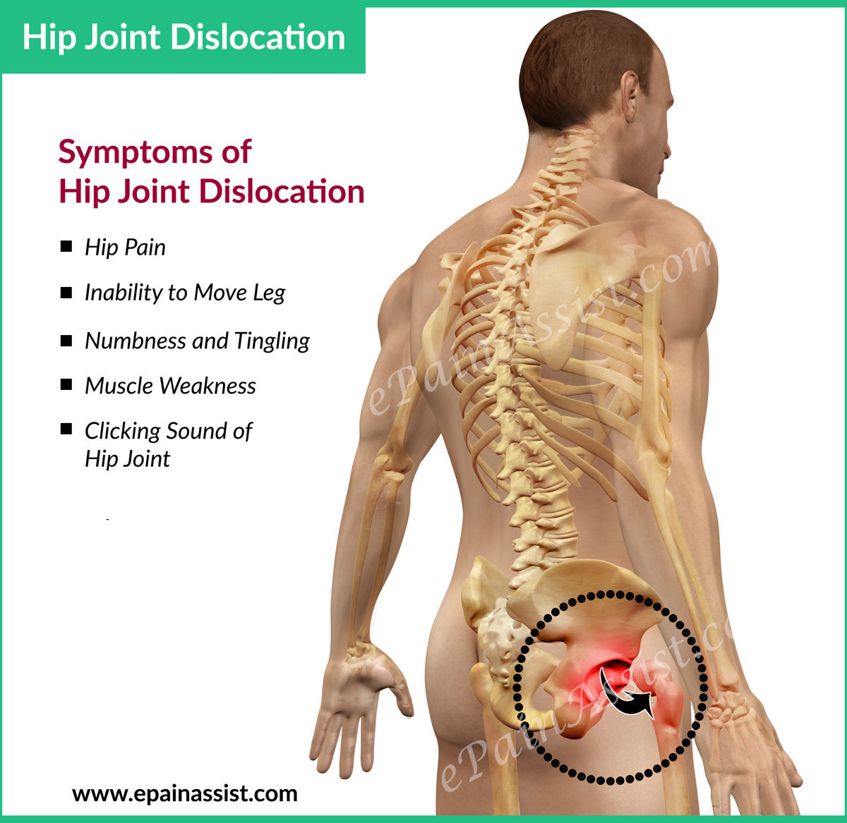hight resolution of hip dislocation