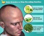 control hair loss home remedies