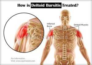 What is Deltoid Bursitis, know its Treatment, Recovery, Exercises, Prognosis, Symptoms and Causes