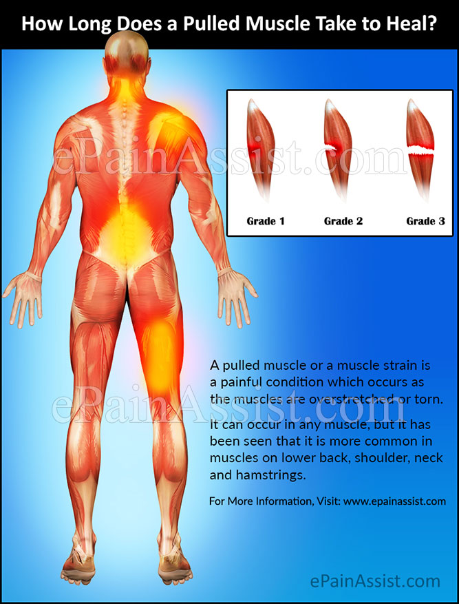 How Long Does a Pulled Muscle Take to Heal?
