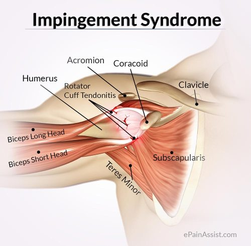 small resolution of impingement syndrome or rotator cuff tendinitis