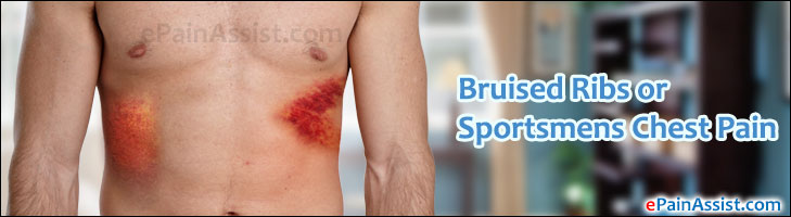 Bruised Ribs or Sportsmens Chest PainCausesRisk Factors