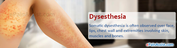 Q And A On Dysesthesia Types Somatic Visceral Cutaneous