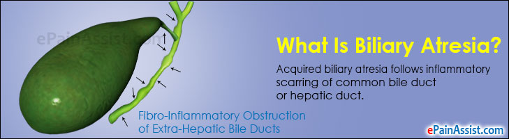 Biliary AtresiaCauses Symptoms Signs Treatment