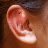 Earache or Ear Pain Information Center: Perforated Eardrum ...