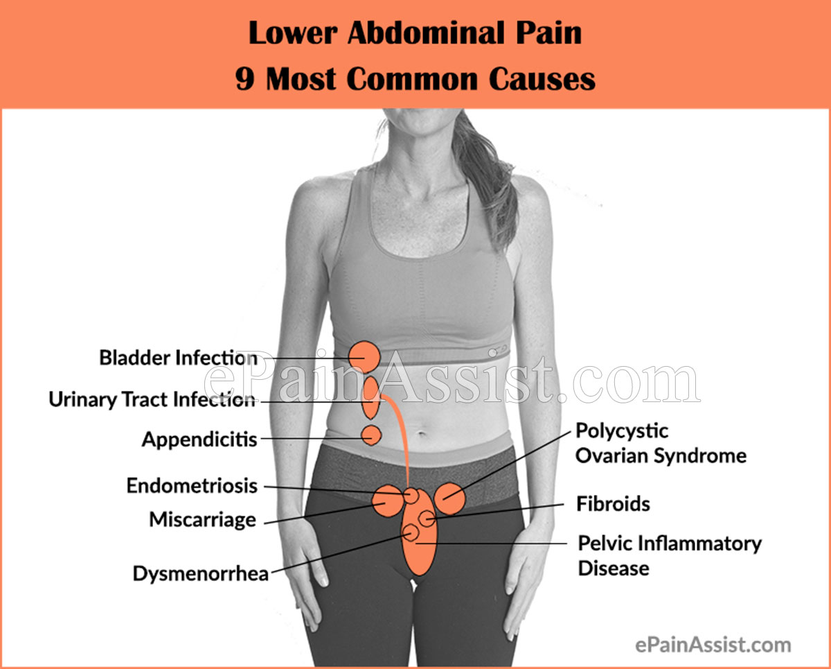 hight resolution of 9 most common causes of lower abdominal pain