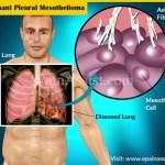malignant pleural mesothelioma risk factors diagnosisrisk factors for malignant pleural mesothelioma