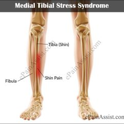 Diagram Of Tibia Stress Fracture Bud Tongue Medial Tibial Syndrome Treatment Causes Symptoms Or Shin Splints