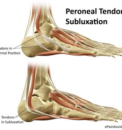 peroneal tendon subluxation or dislocation [ 2252 x 2000 Pixel ]