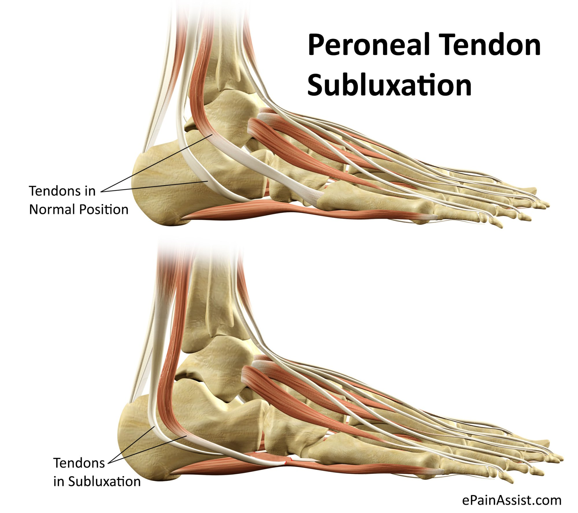 hight resolution of peroneal tendon subluxation or dislocation