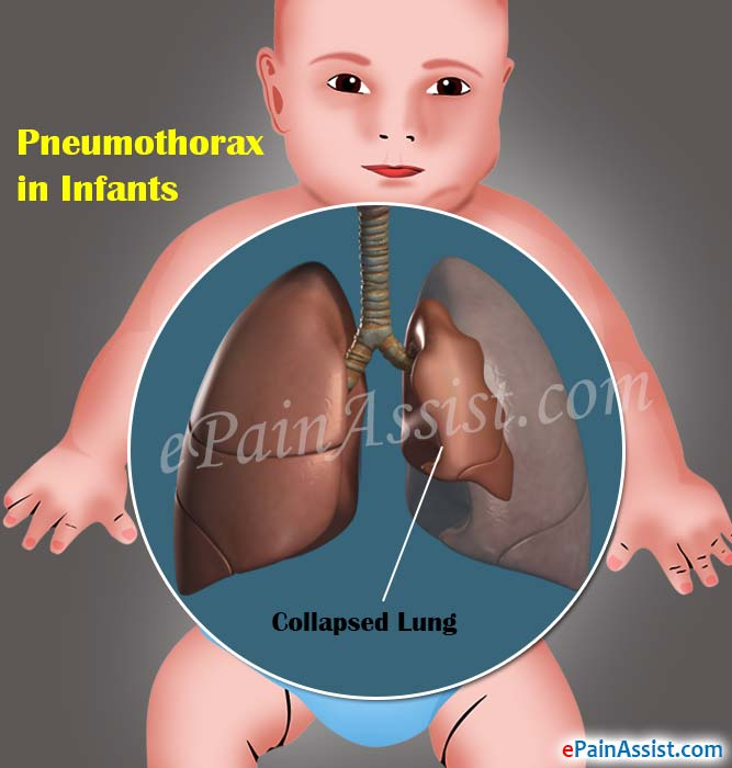 What Causes Pneumothorax in Infants?