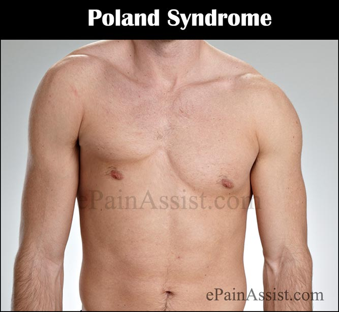 What is Poland SyndromeFeaturesCausesTreatment