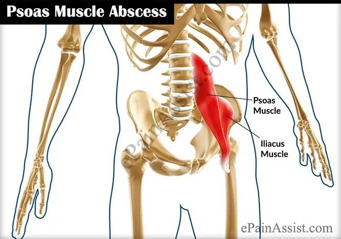 Hip Ache In Diabetes – The Hip Flexor