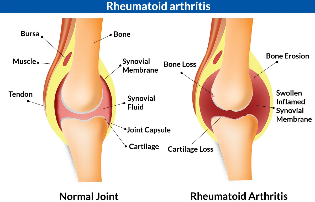 hight resolution of 5 major causes of knee joint pain inflammation infection injury knee torn meniscus swelling swelling knee diagram