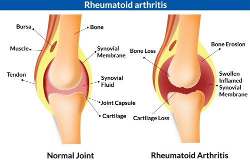 small resolution of 5 major causes of knee joint pain inflammation infection injury knee torn meniscus swelling swelling knee diagram