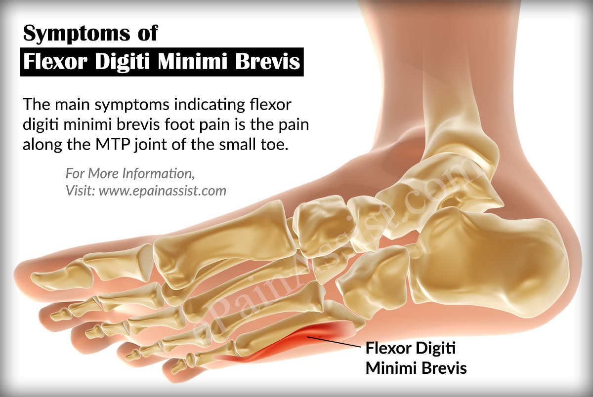 hight resolution of signs and symptoms of flexor digiti minimi brevis foot pain