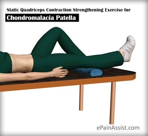 Static Quadriceps Contraction Strengthening Exercise for Chondromalacia Patella (CMP)