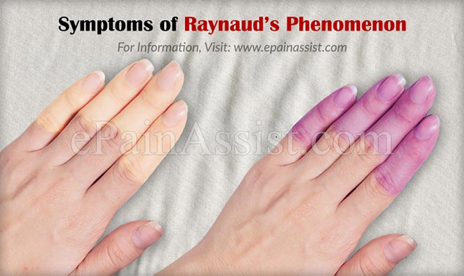 Symptoms of Raynaud's Phenomenon