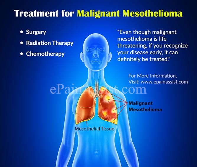 Treatment For Malignant Mesothelioma Surgery Radiation Chemotherapy Clinical Trial Coping Home Reme S