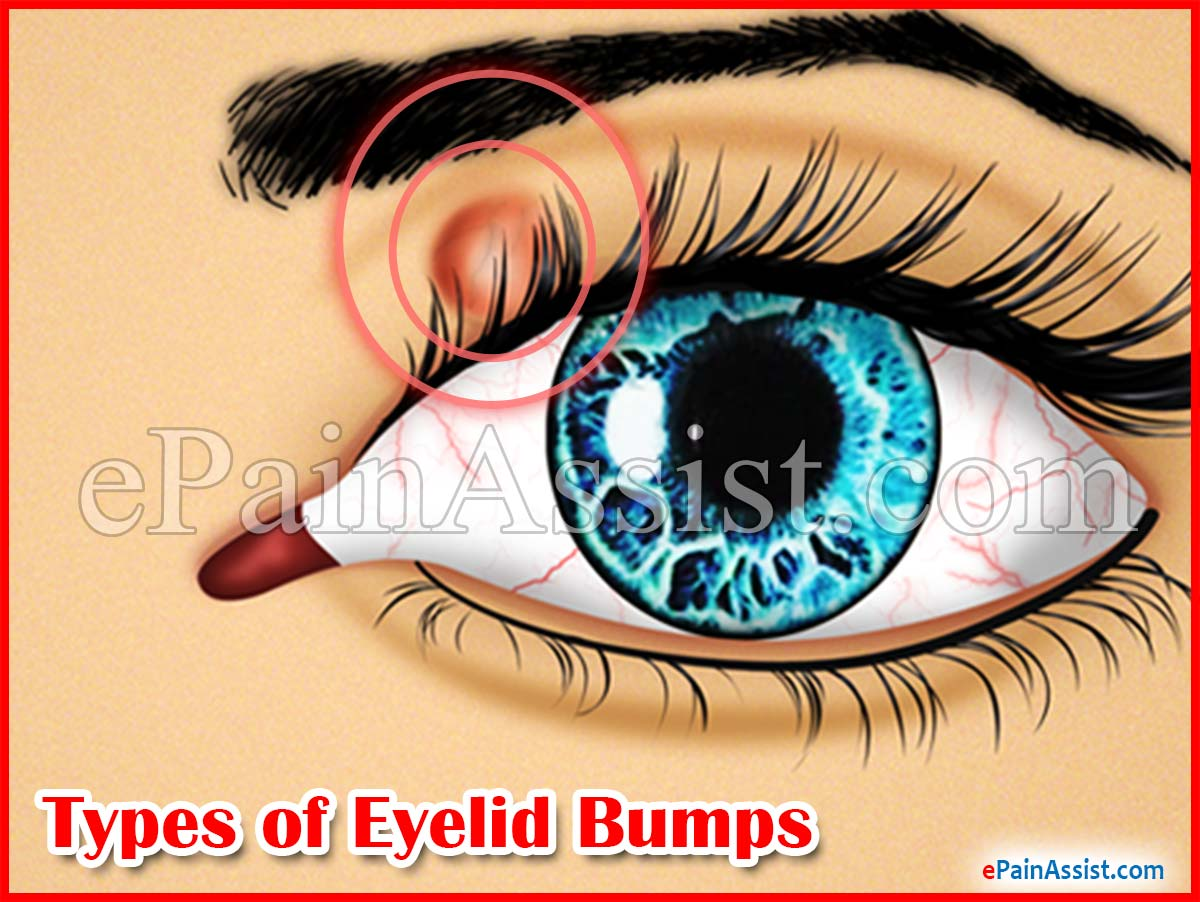 Types Of Eyelid Bumps Amp Treatment To Get Rid Of It