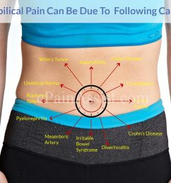 causes of belly button pain or umbilical pain [ 1200 x 900 Pixel ]