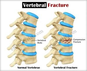 Vertebral Fracture Causes Types Symptoms Risk Factors Complications Diagnosis