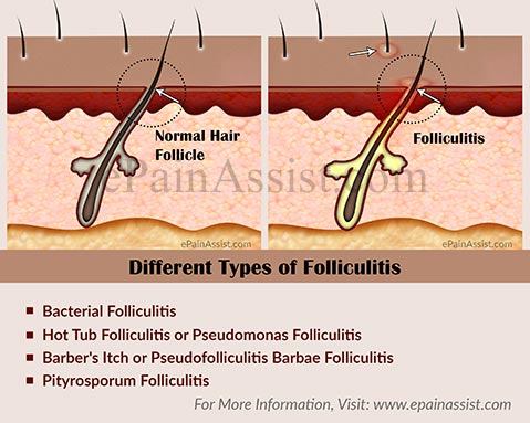 What are the Different Types of Folliculitis?