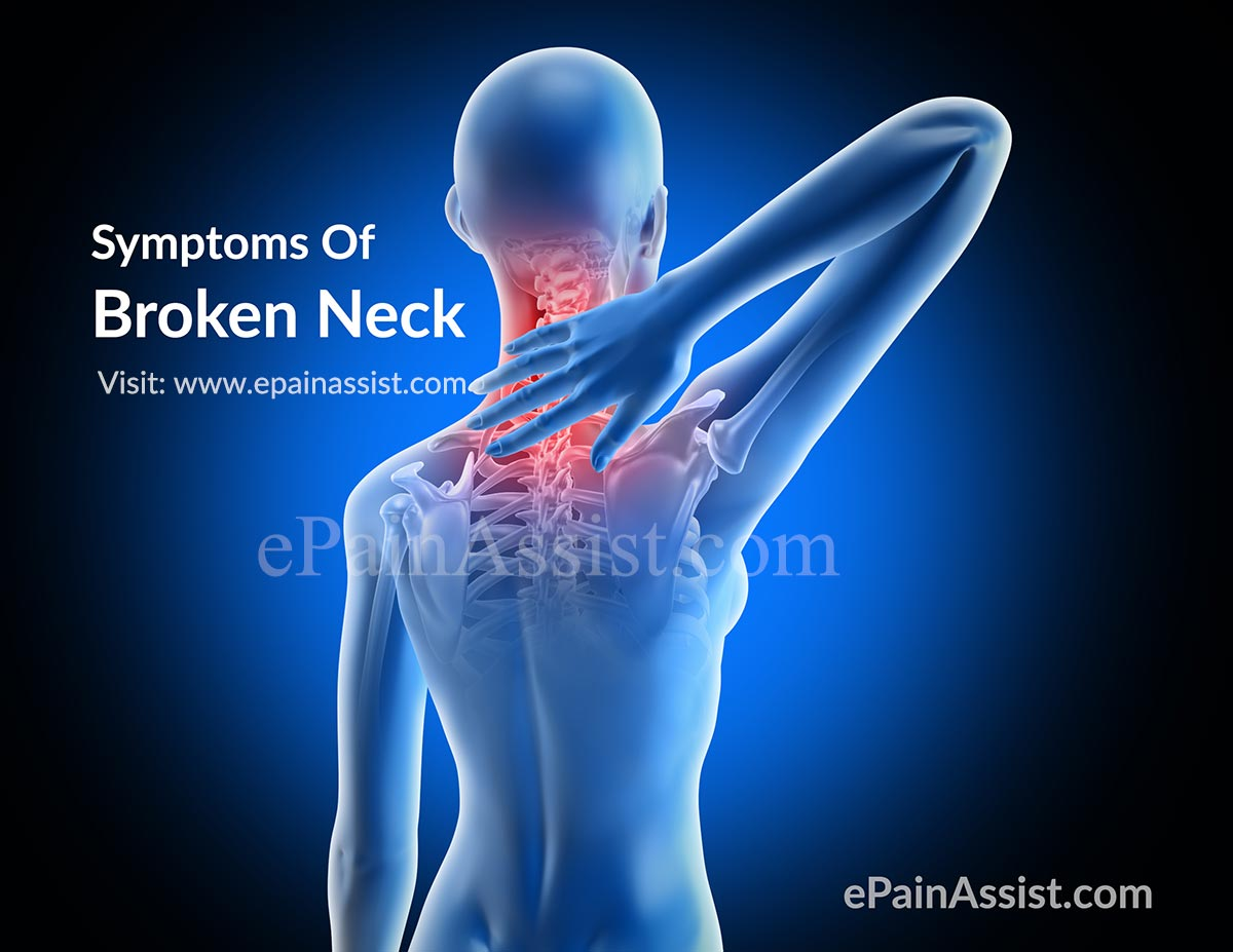 Broken Neck Treatment Physical Therapy Recovery