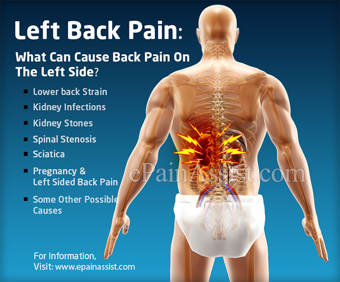 Left Back PainSymptomsCausesTreatmentPrevention