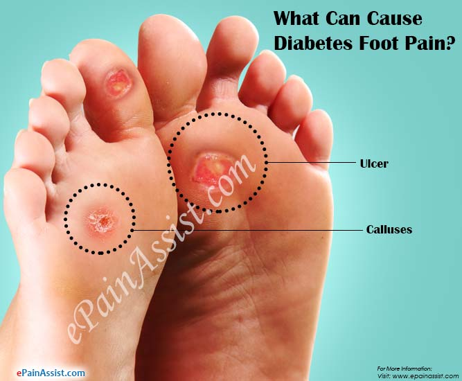 What Can Cause Diabetes Foot PainTreatmentSymptoms