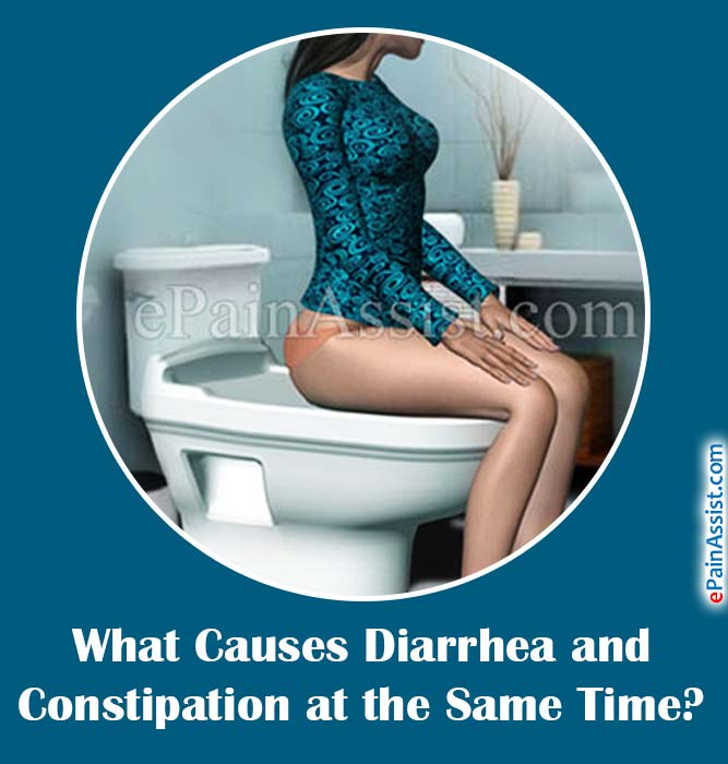 what causes diarrhea and