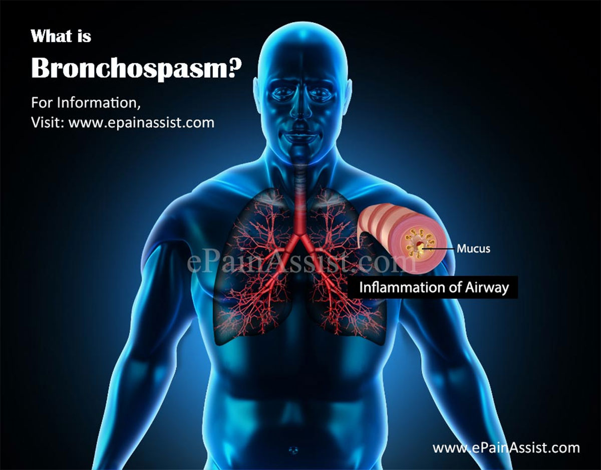 What is Bronchospasm?