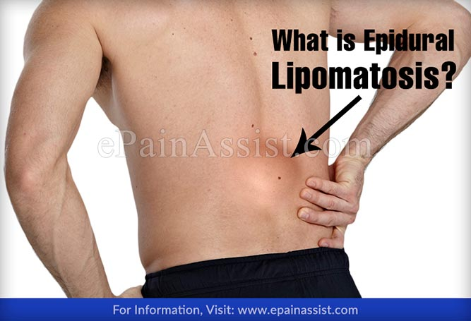 What is Epidural Lipomatosis?