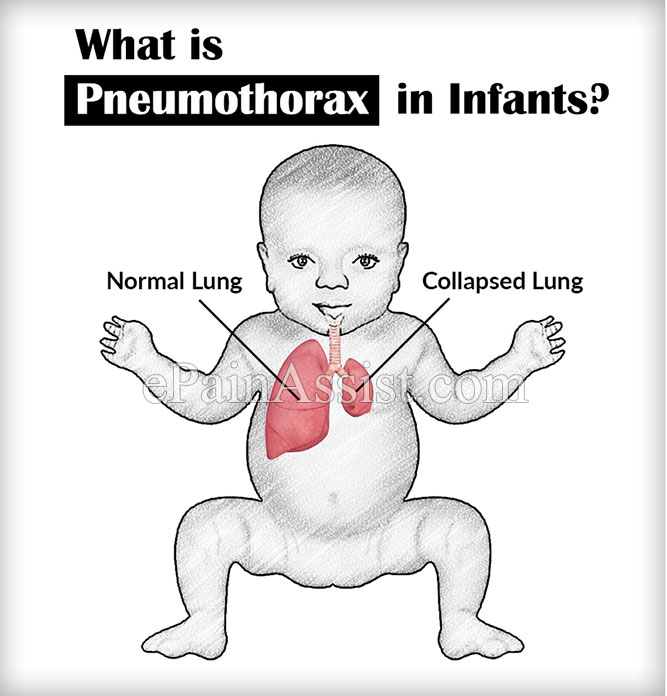 What is Pneumothorax in Infants?