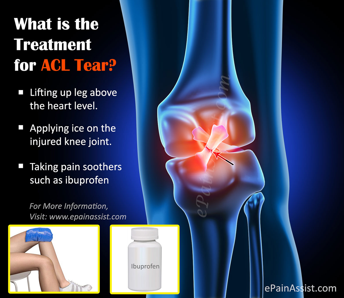 Treatment for ACL Tear|Surgery|Post Operative Rehab|Recovery