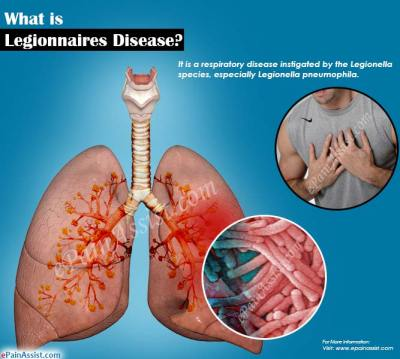 What is Legionnaires Disease|Signs|Symptoms|Treatment ...