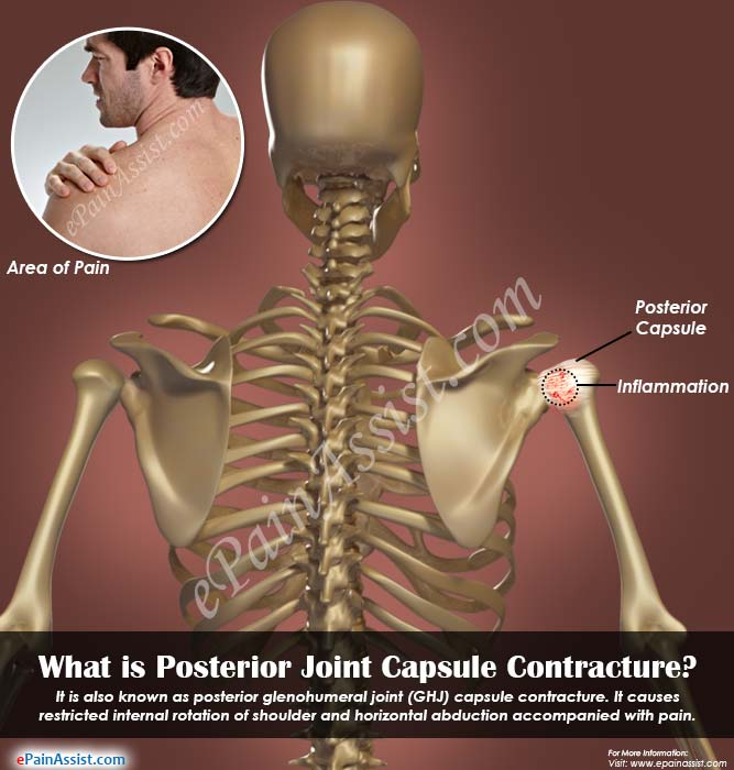 What is Posterior Joint Capsule Contracture|Symptoms ...