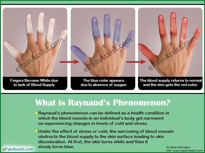 What is Raynaud's Phenomenon?
