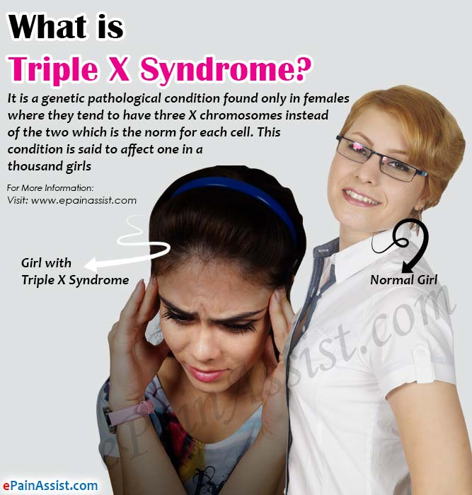 Famous People Fragile X Syndrome