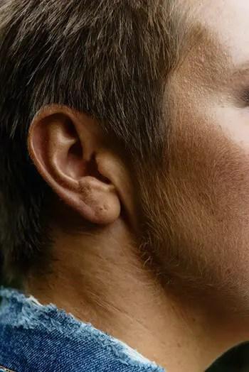 can cure earache