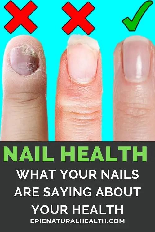 NAIL HEALTH PIN
