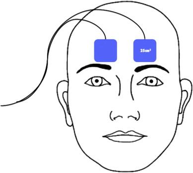 Trigeminal nerve stimulation (TNS) protocol for treating