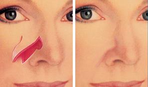 Image result for adjacent tissue transfer