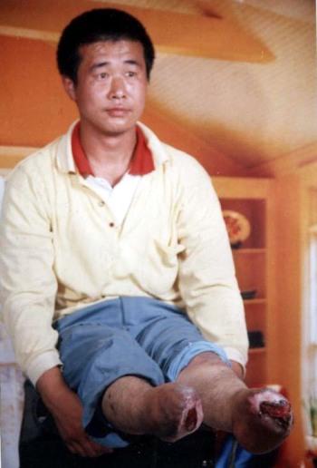 Ван Синьчунь стал инвалидом в результате незаконного преследования. Фото: minghui.ca