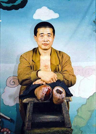 Последователь Фалуньгун из провинции Хэйлунцзян Ван Синчун, в результате пыток стал инвалидом, лишившись обеих ног