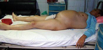 После пыток в полицейском участке у Ма Хунвэя распух живот
